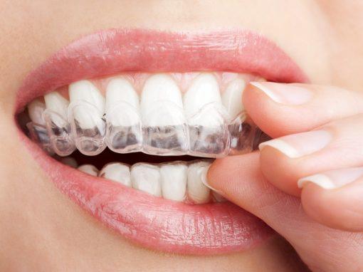 Invisalign – Невидим апарат за изправяне на зъби