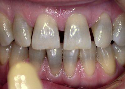 Избелване на зъби KöR Whitening | ПРЕДИ |