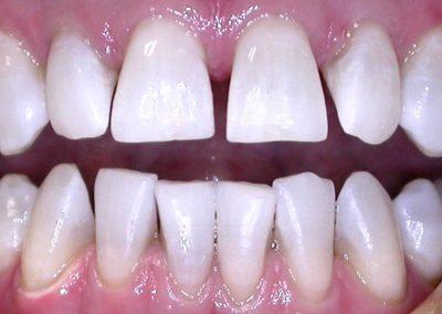 Избелване на зъби KöR Whitening | СЛЕД |